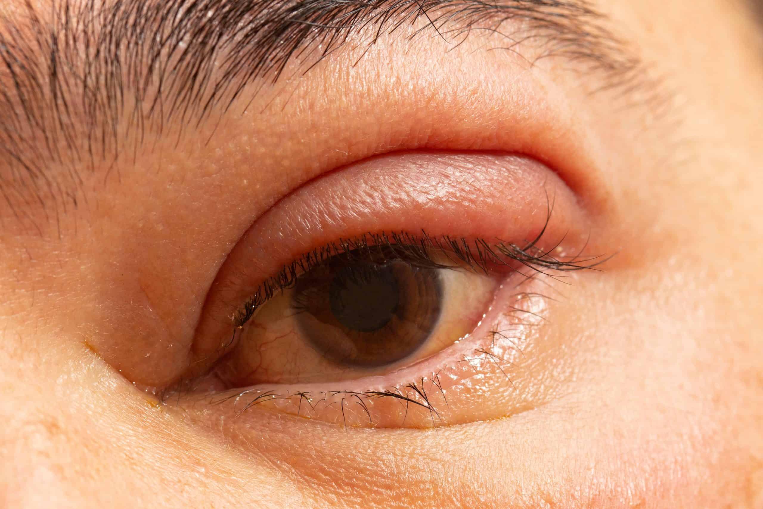 Managing Eyelid Inflammation Hartford